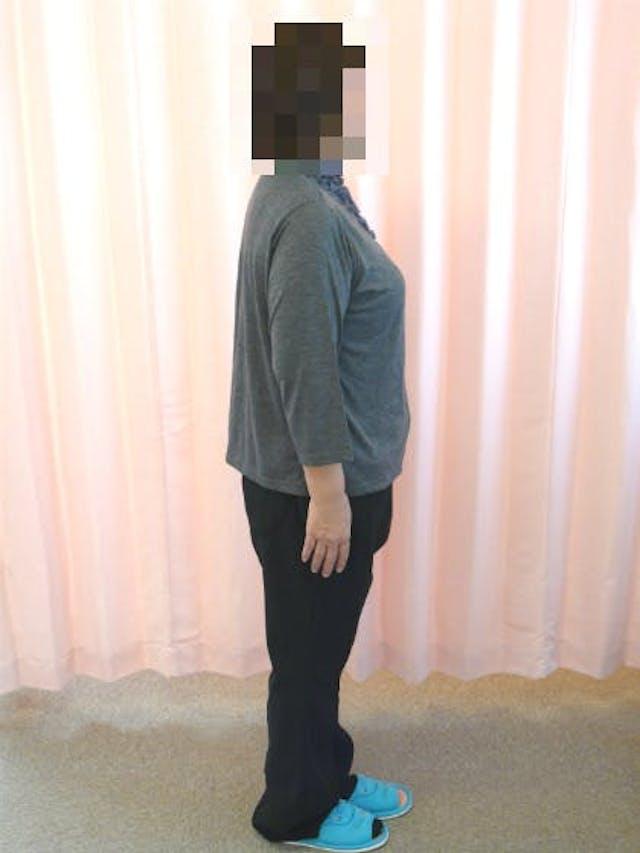 9ヶ月で-30.3kgのダイエット(M様 52歳 女性)