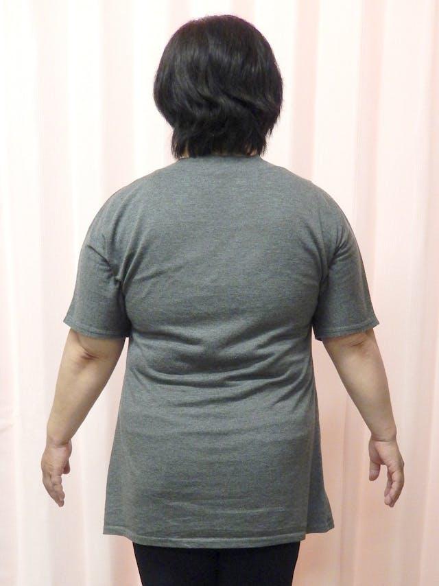 3ヵ月で-14㎏のダイエット(T様59歳女性)