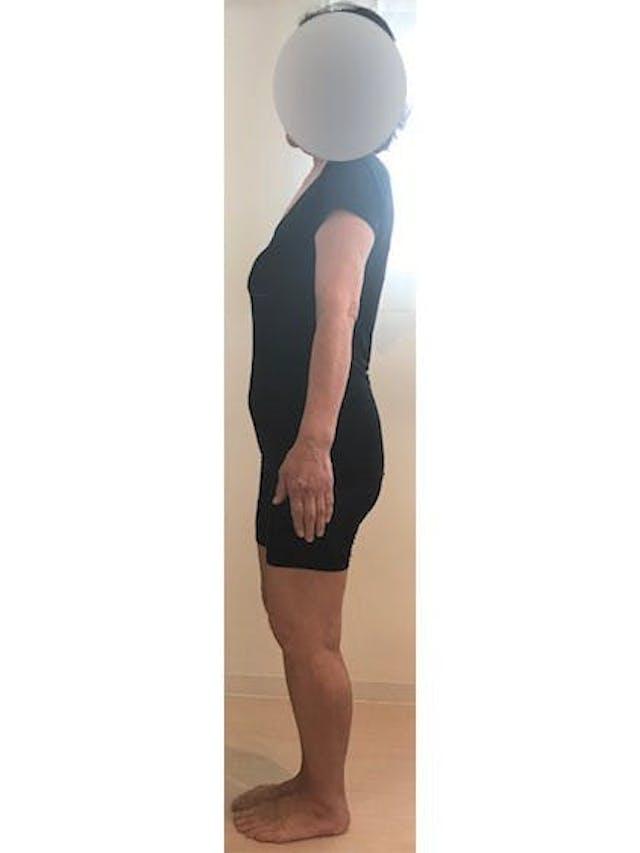 耳つぼダイエット:60歳で-16kg達成!(リョウコ様 60歳 主婦)