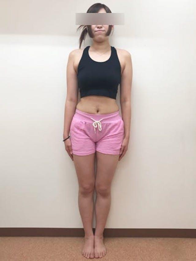 ウエスト-17cm達成!!(23歳 女性)