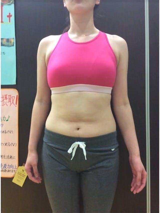 3か月でウエスト-17cm達成!!(28歳 女性 H様)