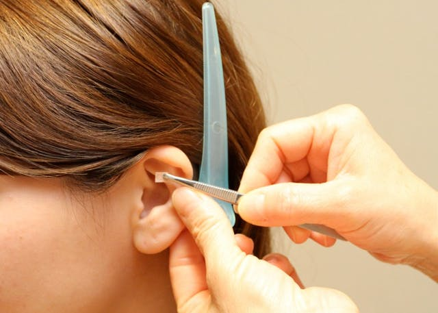耳ツボ施術1回