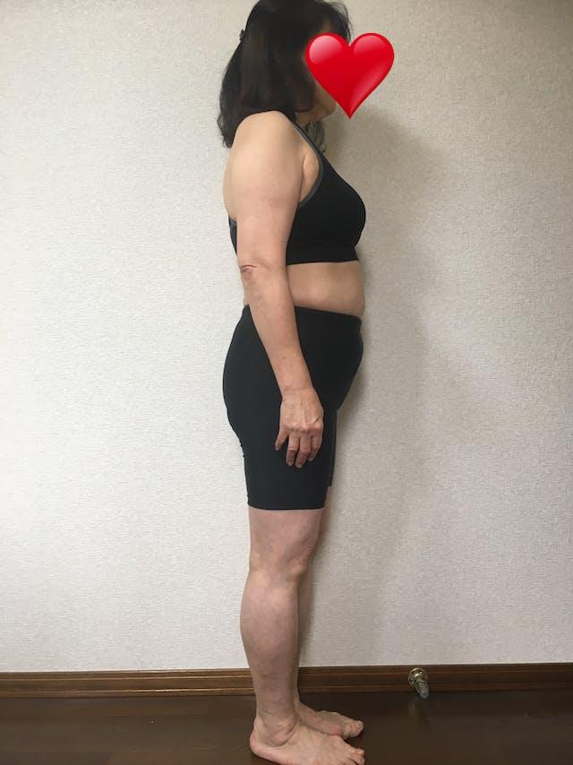 肥満を脱して、糖尿病を克服したい(156cm 49歳 女性)