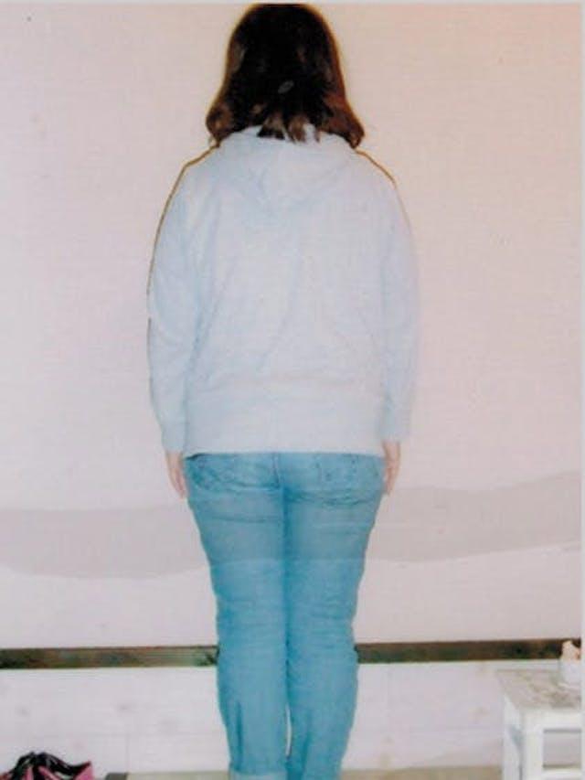 20kg以上もキレイに痩せれました(151cm 前橋市在住 20歳)