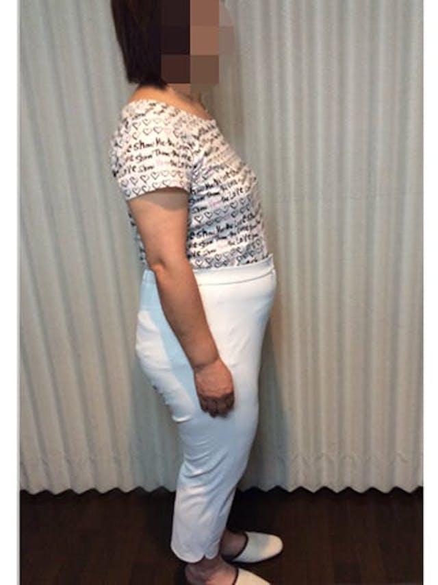 5ヶ月で-21.1kg!1年後、開始時より25.2kg!(57歳 160cm 女性)