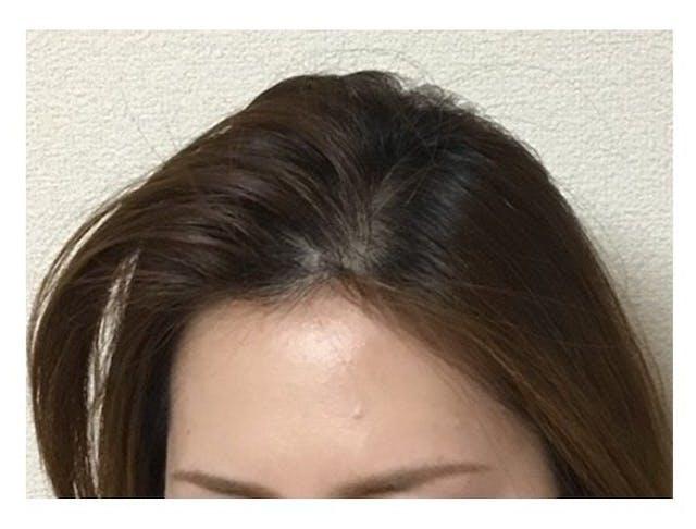 6ヶ月で発毛効果を実感できました!