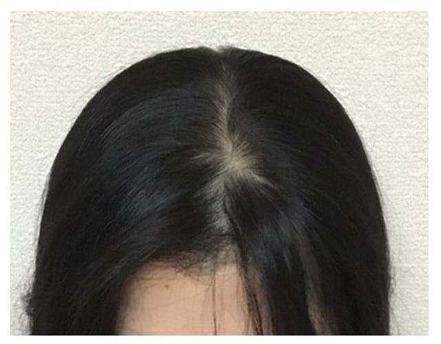 こちらで施術をしてもらい6ヶ月で発毛効果を実感できました!