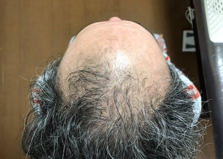 効果実証済みの発毛理論で根本的な頭皮改善!
